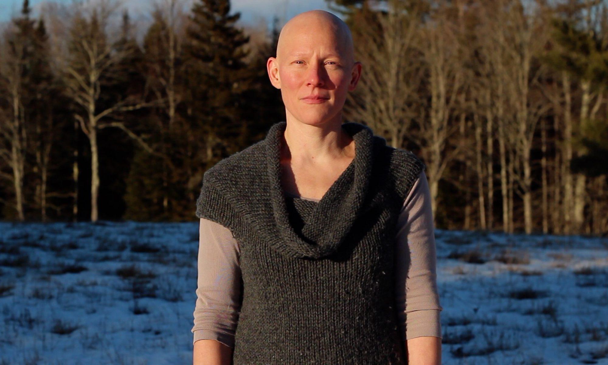 Mop Cap : An Alopecia Story